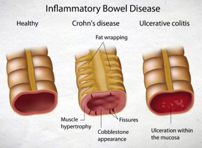 ulcerative colitis vs crohn's