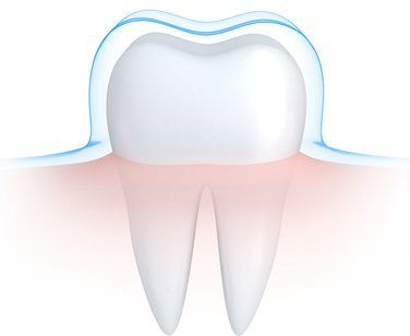 tooth enamel repair
