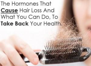 hair loss hormones