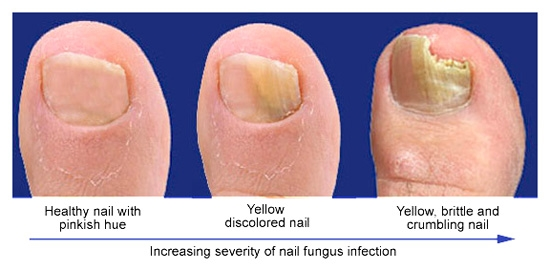 what causes toenail fungus