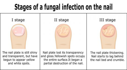 stages of toenail fungus