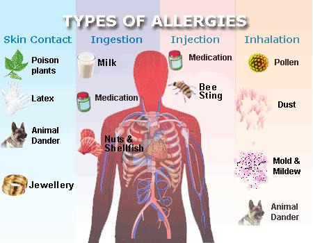 allergy types