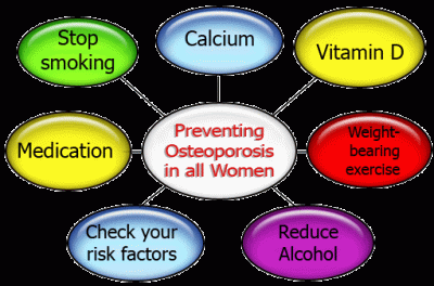 preventing osteoporosis