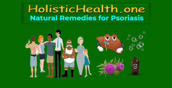 natural psoriasis remedies