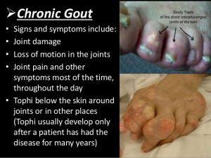 Chronic Gout Treatment