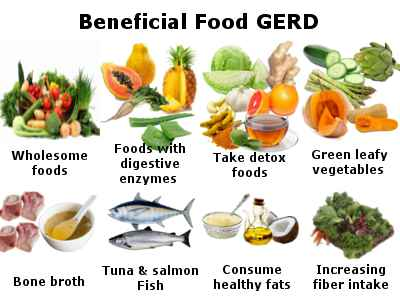 best foods for gerd