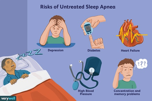 sleep apnea risks