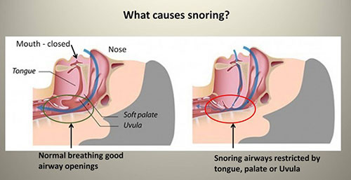 How to Stop Snoring Naturally
