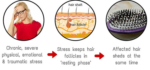 natural remedies for hair regrowth