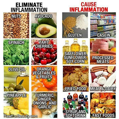 Foods to Avoid for Inflammation